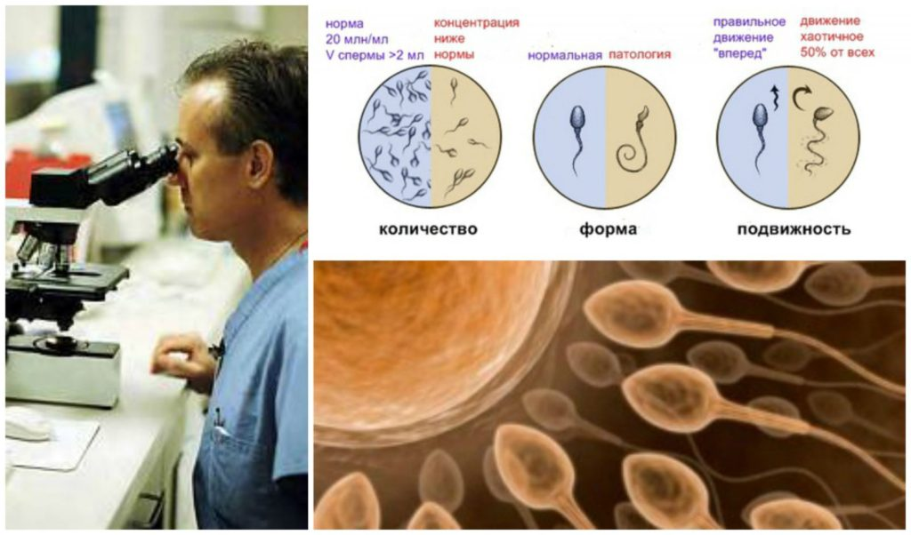 Аномальные показатели спермограммы