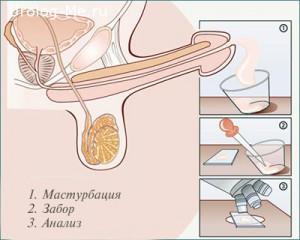 Как сдавать спермограмму?