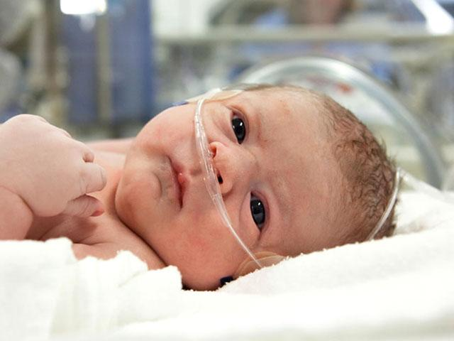 Асфиксия у новорождённых