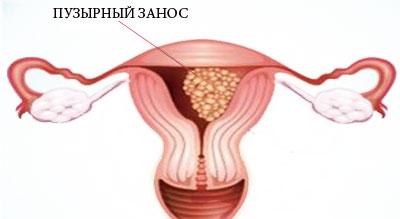 Молярная-беременность пузырный занос