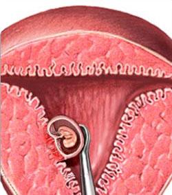 Лечение стоматита в домашних условиях и народными средствами