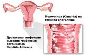 молочница на стенках влагалища при беременности