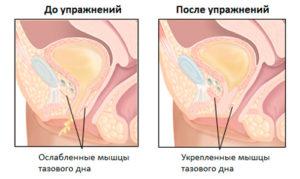 luchevoy-epiteliit-vlagalisha