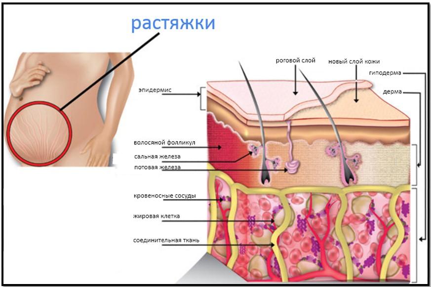 деформация внутренних слоев кожи