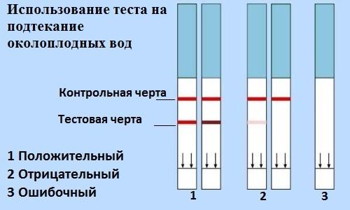 Тест на подтекание вод 2 этап