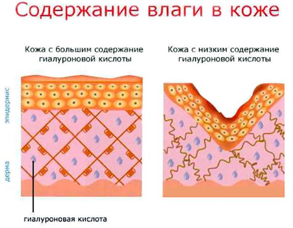 Содержание влаги в коже