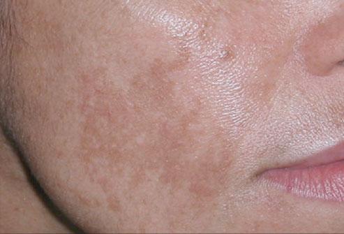 Пигментация кожи - хлоазма