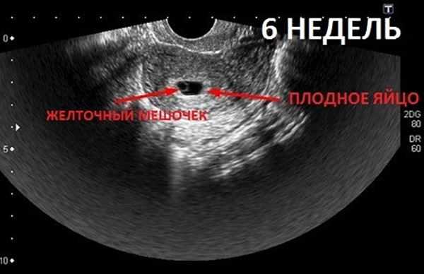 узи 6 недель беременности