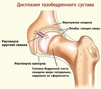 Вертлужная впадина при дисплазии тазобедренного сустава