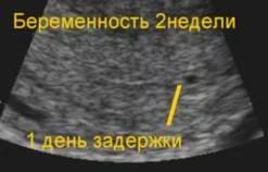С какого срока можно определить наличие беременности с помощью УЗИ