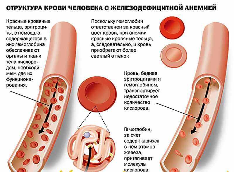 Что такое анемия при беременности