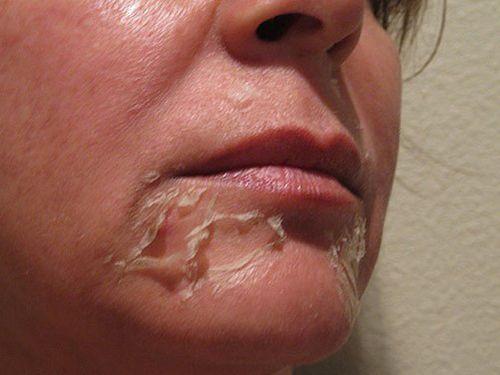 Почему кожа шелушиться после загара