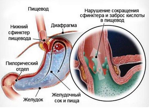 рефлюкс у грудничков