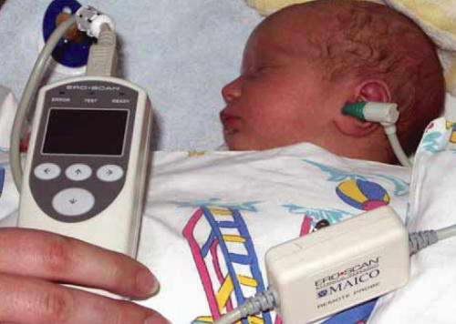Исследование слуха у новорожденных в роддоме