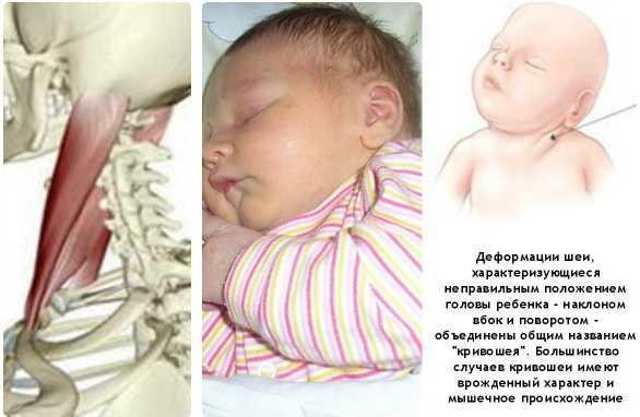 Кривошея-у-грудничка-симптомы
