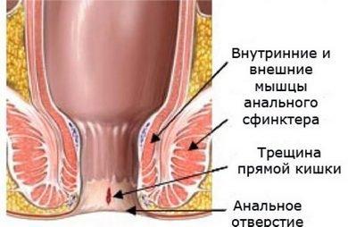 Небольшая трещина в прямой кишке