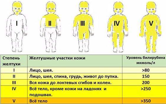 Степень физиологической желтухи у новорожденных