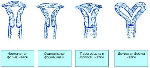 аномалии развития при тонусе матки
