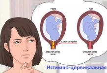 истмико-цервикальная недостаточность