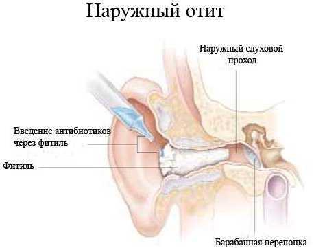 наружный отит у грудных детей - лечение