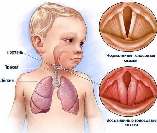опухли голосовые связки у ребенка
