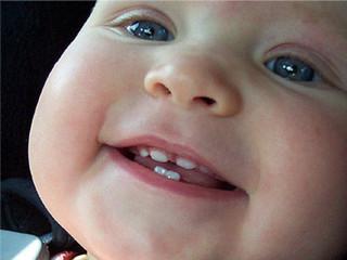 9 месячный ребенок режутся верхние зубы