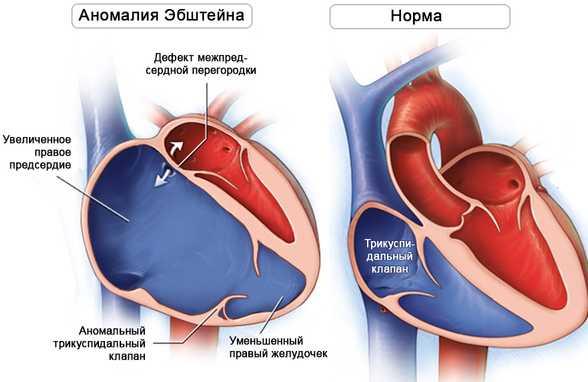 Аномалия эбштейна врожденный порок сердца у новорожденного