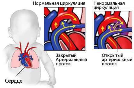 Артериальный проток врожденный порок сердца у новорожденных