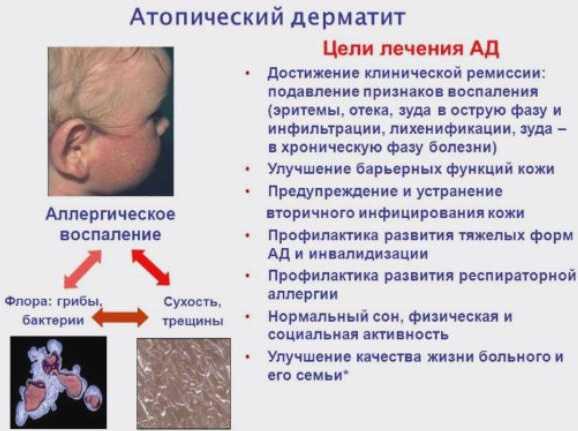 Атопический дерматит у грудничка - цели лечения