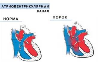 Атриовентрикулярный канал врожденный порок сердца у новорожденных