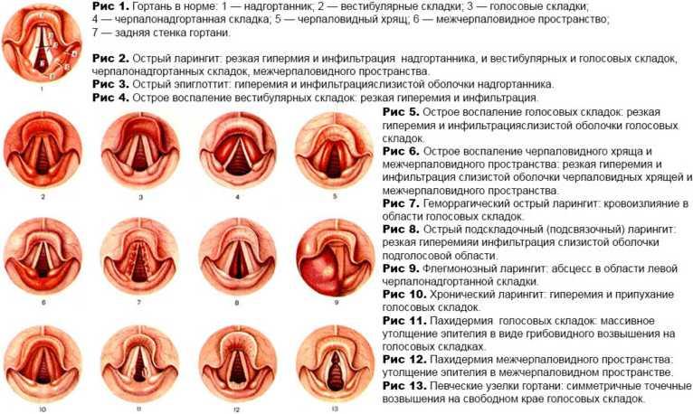 Виды воспаления гортани про ларингите у детей