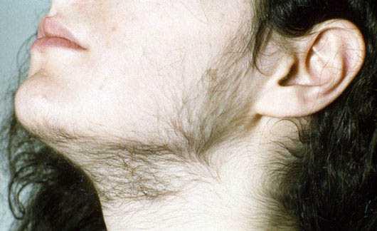 Вирилизация у женщин при врожденной гиперплазии коры надпочечников