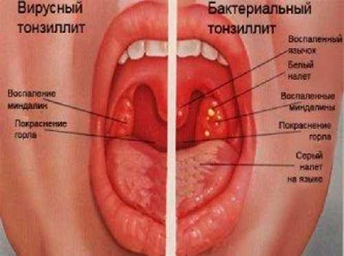 Вирусный и бактериальный тонзиллит у детей