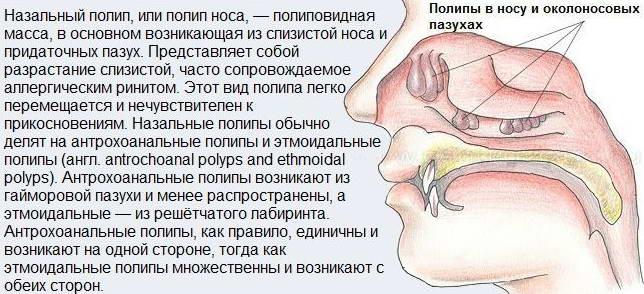 Возникновение полипа в носу у ребенка