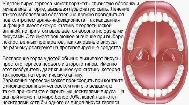 Ангина у детей: симптомы и лечение badiga.ru