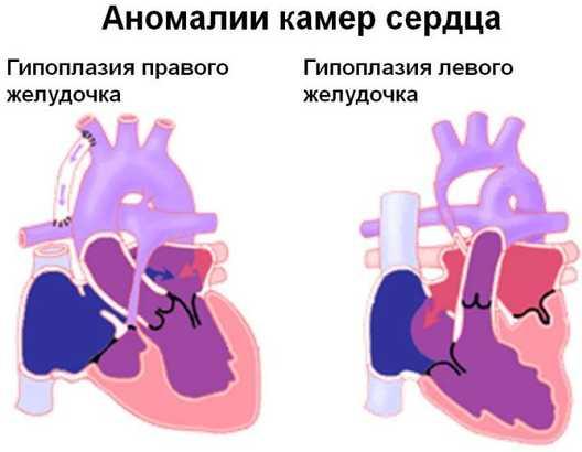 Гипоплазия левого сердца врожденный порок сердца у новорожденного