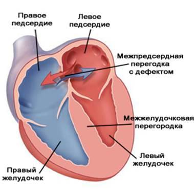 Дефект межпредсердной перегородки врожденный порок сердца у новорожденного