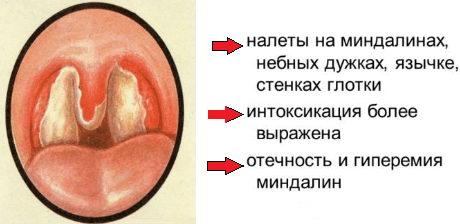 Дифтерия симптомы у детей