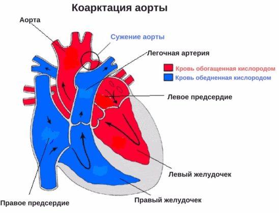 Коарктация аорты в рожденный порок сердца у новорожденных