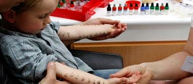 Кожный тест на аллергены поллиноза у детей