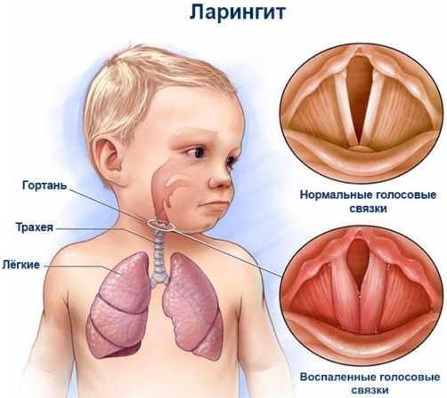 Как выглядит ларингит у детей