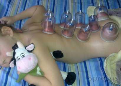 Лечение вирусной пневмонии у детей при помощи банок