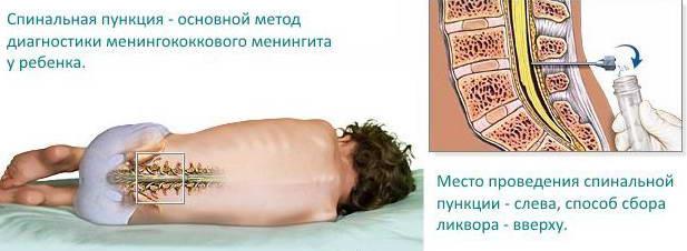 Люмбальная пункция для диагностики менингита у детей
