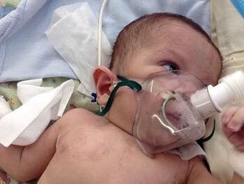 Нарушение дыхания у новорожденных