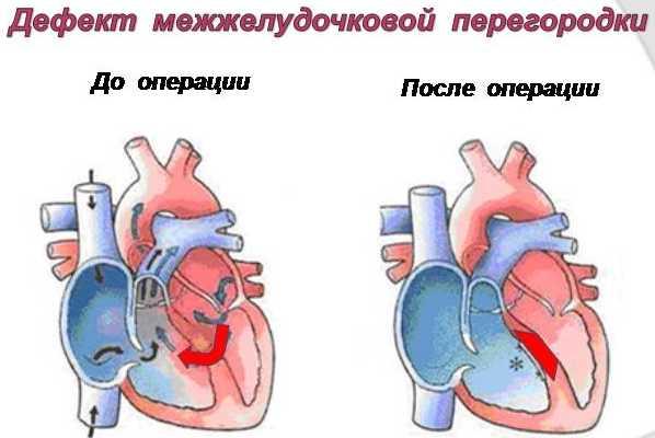 Операционное устранение дефекта межжелудочковой перегородки
