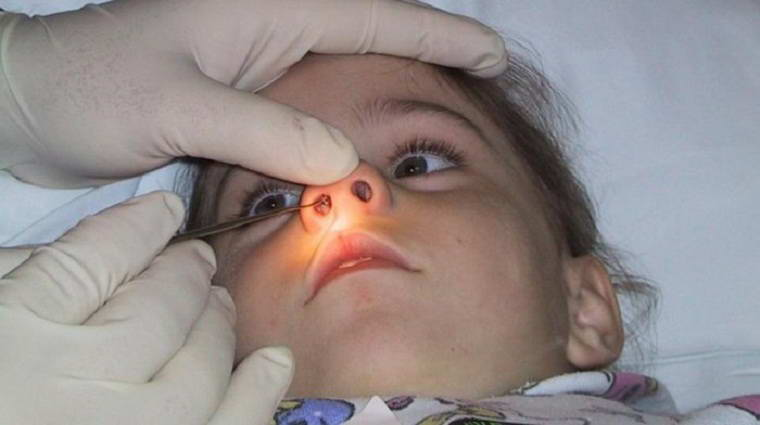 Полипы в носу у ребенка