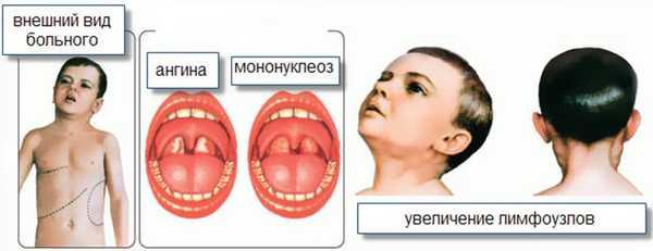 Признаки инфекционного мононуклеоза у детей