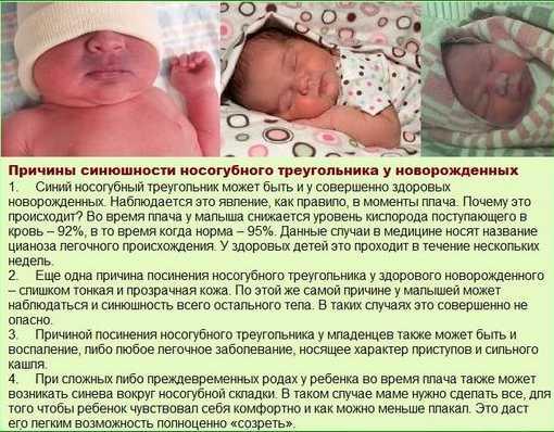 Причины цианоза у новорожденных