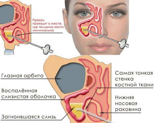 Пункция пазух носа