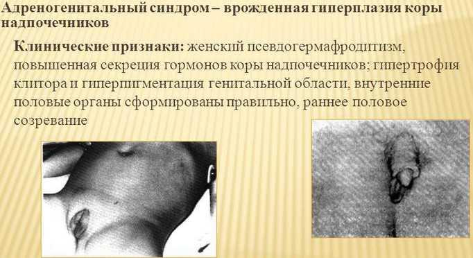 Симптомы врожденной гиперплазии надпочечников
